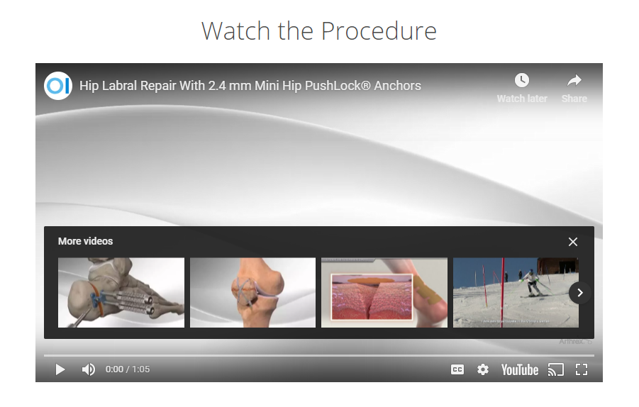 Hip Arthroscopy video still